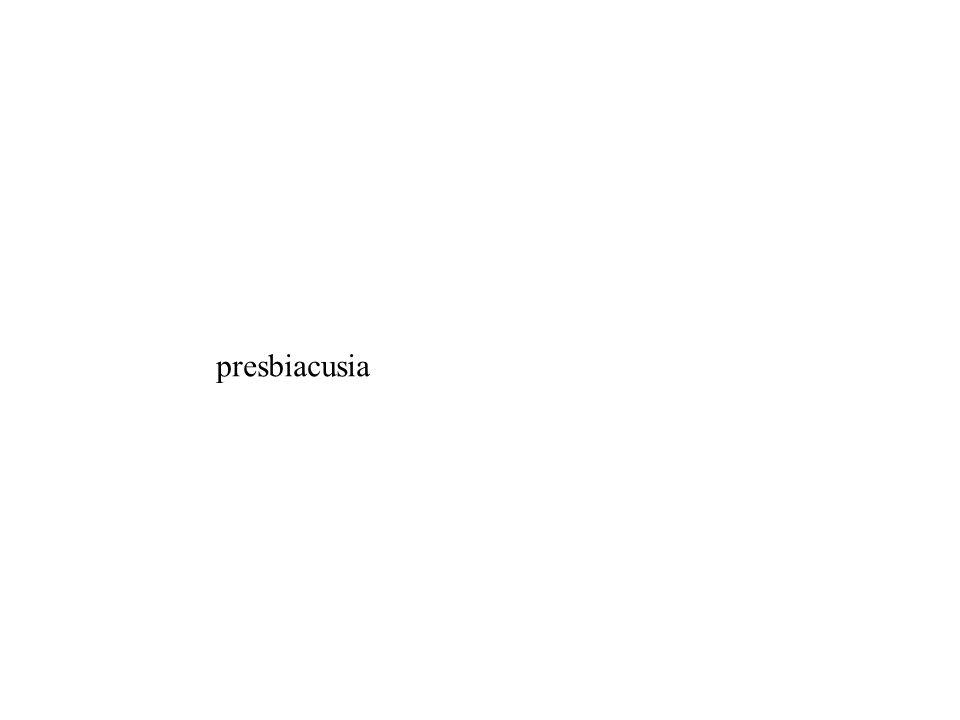 presbiacusia