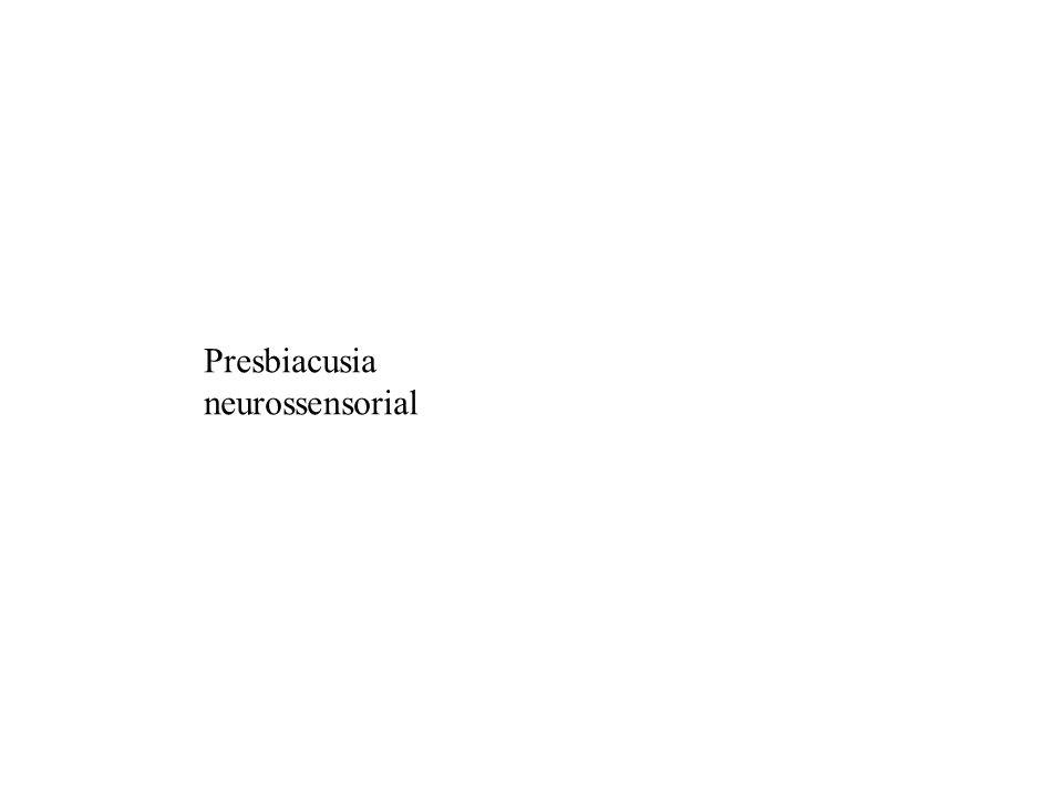 Presbiacusia neurossensorial