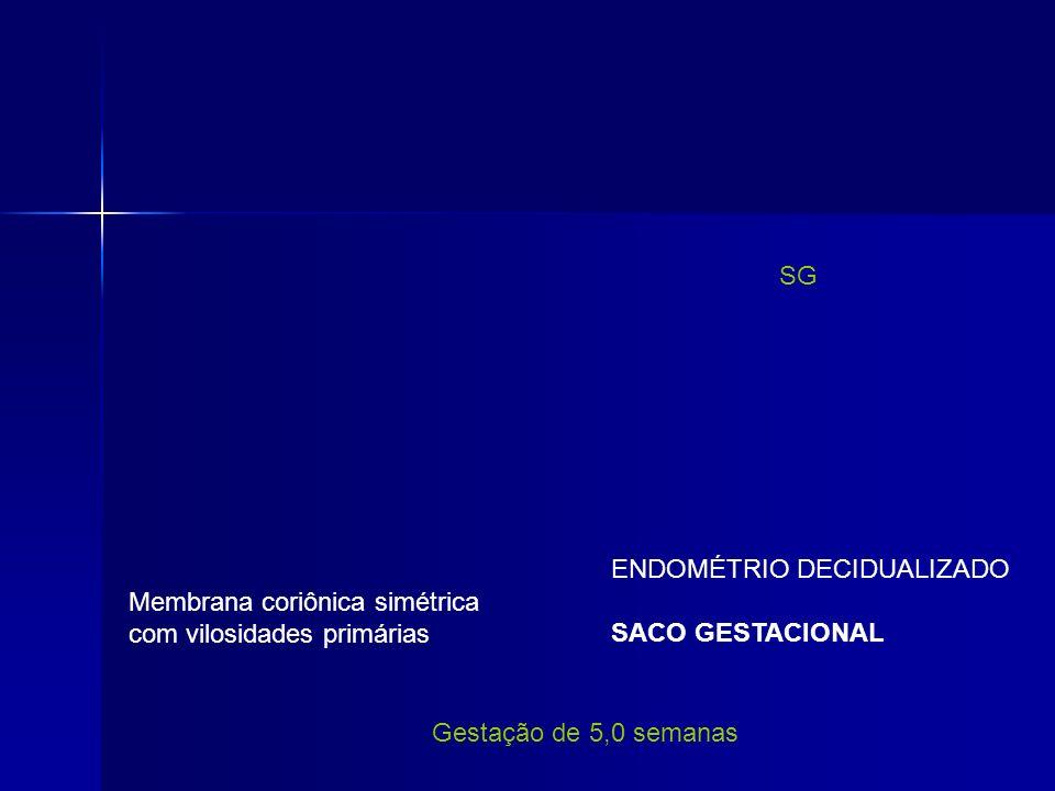 ENDOMÉTRIO DECIDUALIZADO SACO GESTACIONAL SG Membrana coriônica simétrica com vilosidades primárias Gestação de 5,0 semanas