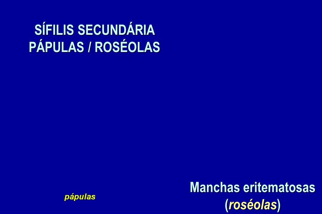 SÍFILIS SECUNDÁRIA PÁPULAS / ROSÉOLAS pápulas Manchas eritematosas ( roséolas )