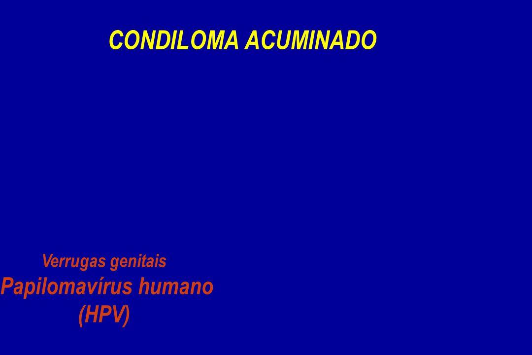 CONDILOMA ACUMINADO Verrugas genitais Papilomavírus humano (HPV)