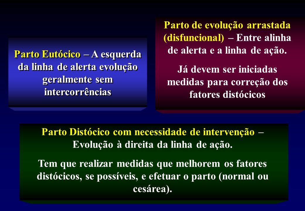 Parto Eutócico – A esquerda da linha de alerta evolução geralmente sem intercorrências Parto de evolução arrastada (disfuncional) – Entre alinha de alerta e a linha de ação.