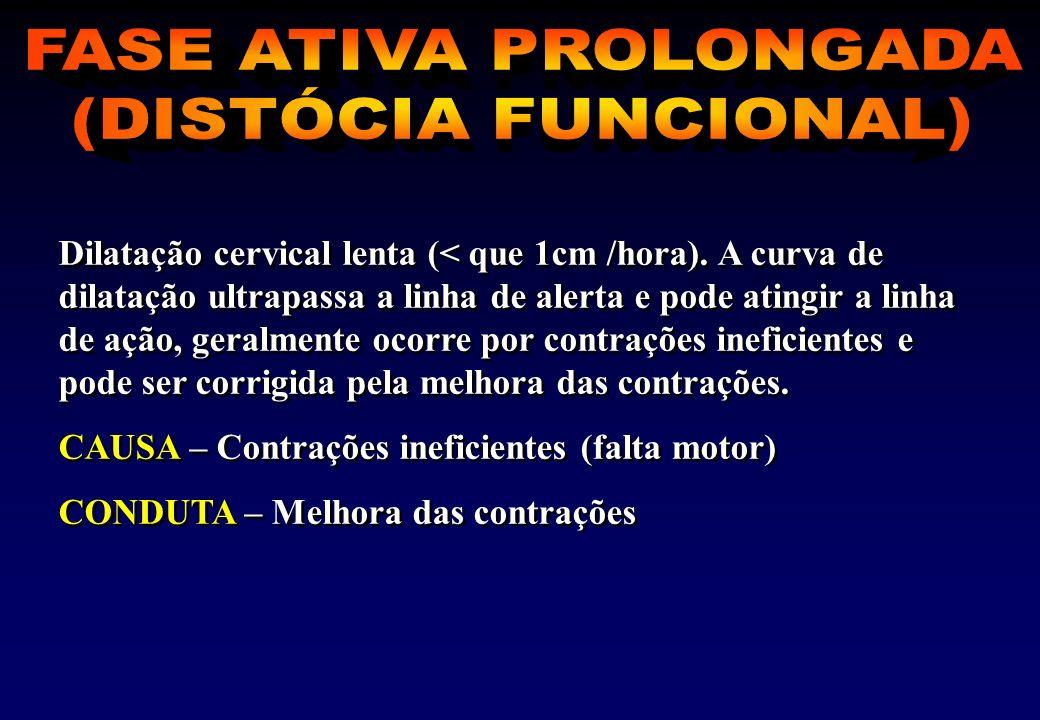 Dilatação cervical lenta (< que 1cm /hora).