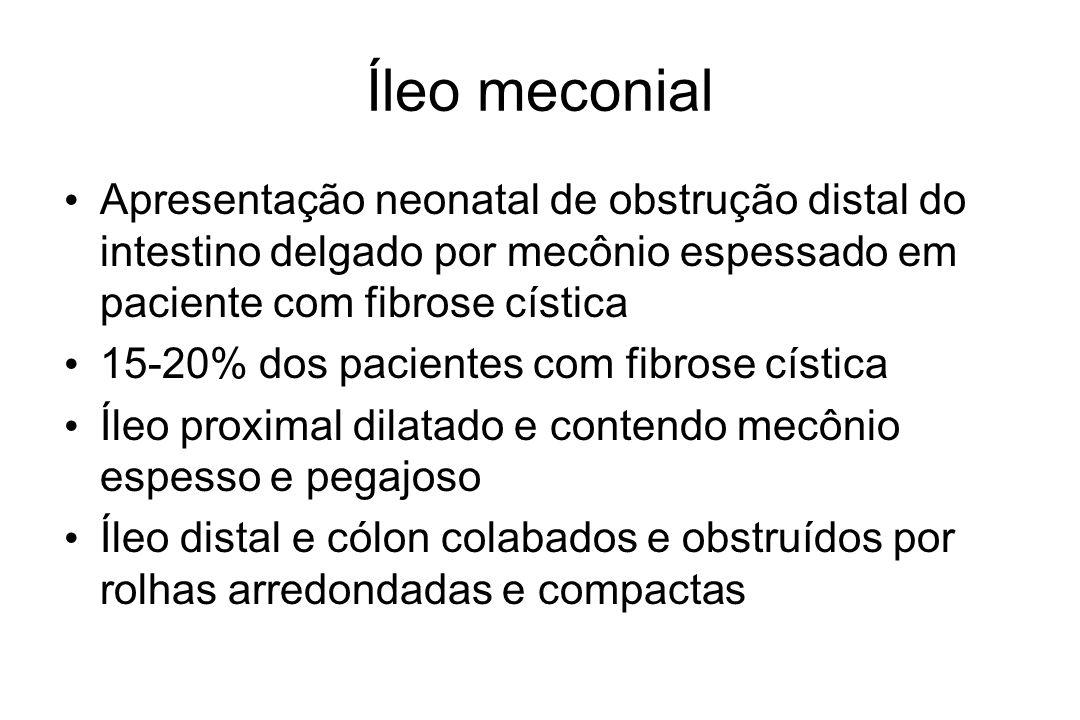Íleo meconial Apresentação neonatal de obstrução distal do intestino delgado por mecônio espessado em paciente com fibrose cística 15-20% dos paciente