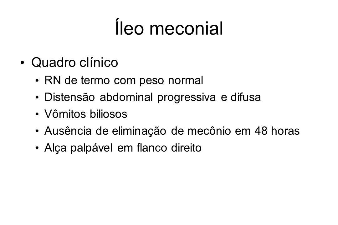 Íleo meconial Quadro clínico RN de termo com peso normal Distensão abdominal progressiva e difusa Vômitos biliosos Ausência de eliminação de mecônio e
