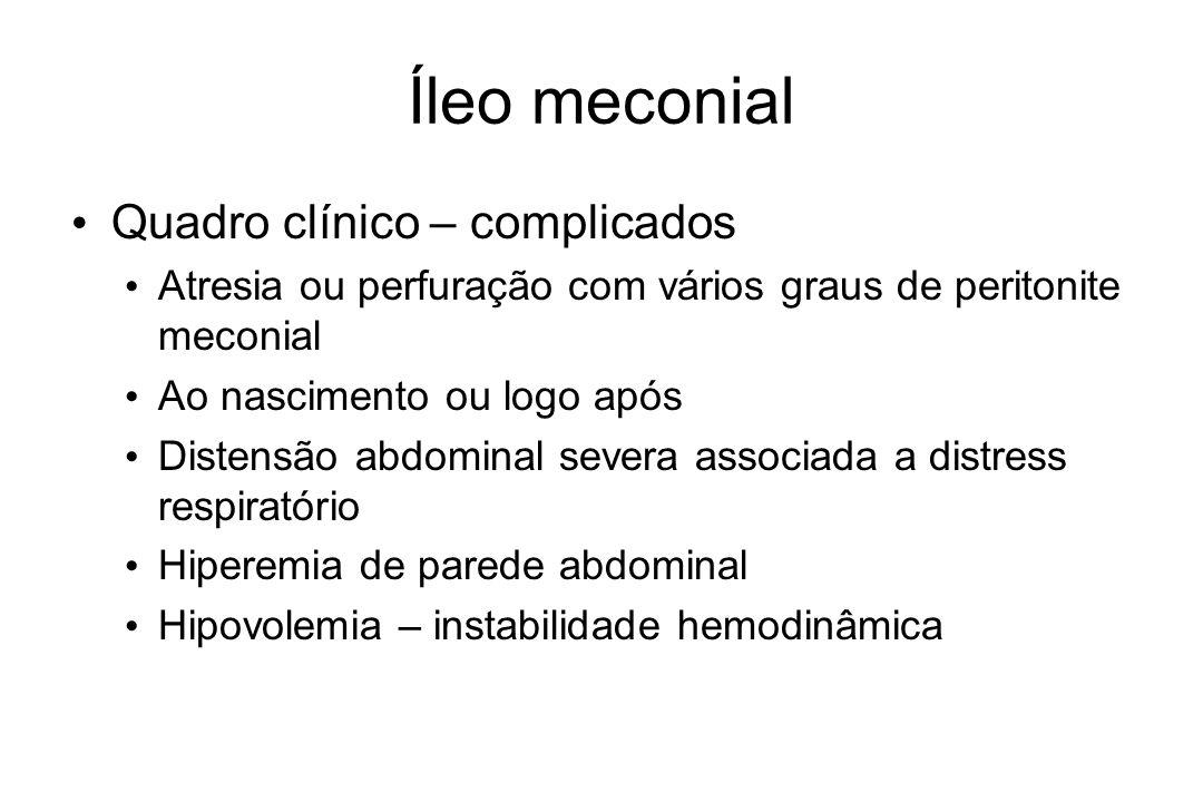 Íleo meconial Quadro clínico – complicados Atresia ou perfuração com vários graus de peritonite meconial Ao nascimento ou logo após Distensão abdomina