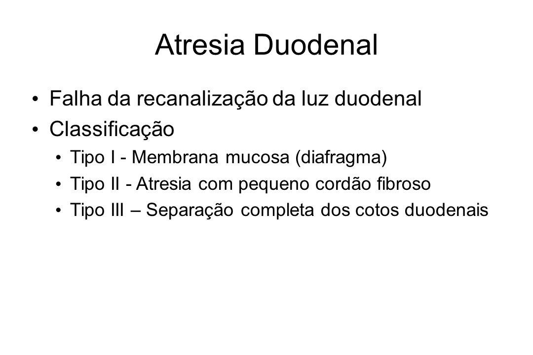 Atresia Duodenal Falha da recanalização da luz duodenal Classificação Tipo I - Membrana mucosa (diafragma) Tipo II - Atresia com pequeno cordão fibros