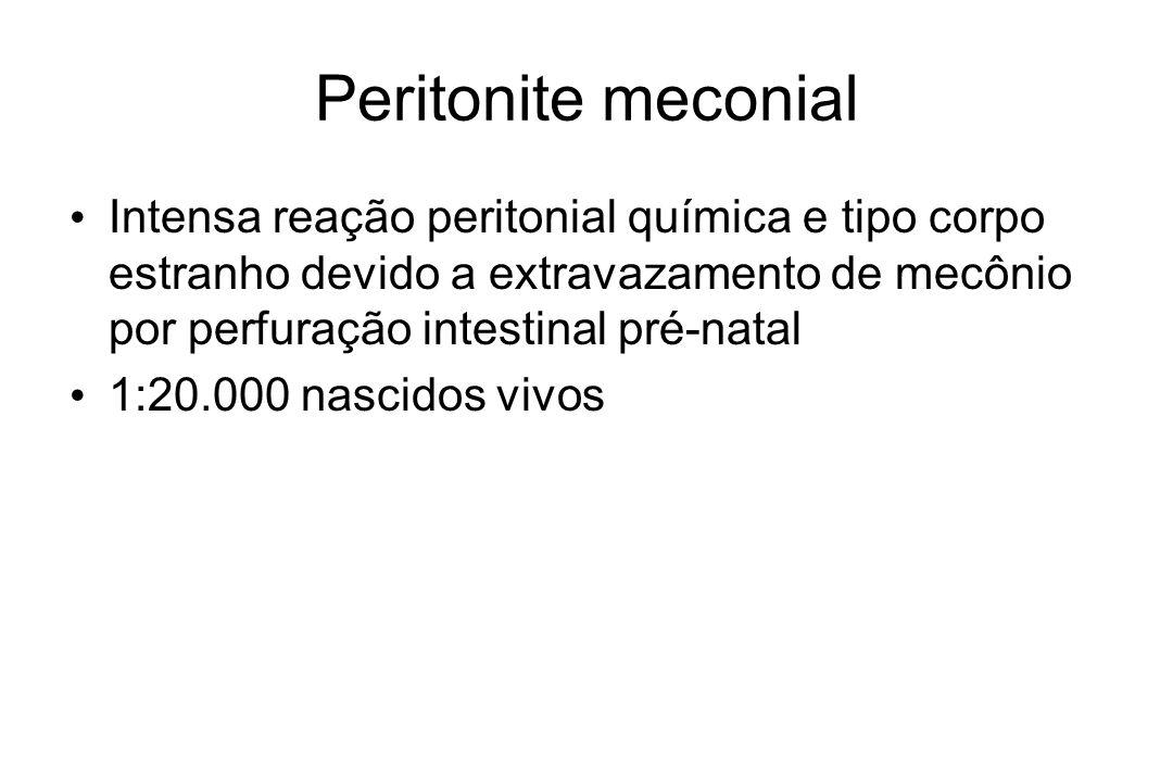 Peritonite meconial Intensa reação peritonial química e tipo corpo estranho devido a extravazamento de mecônio por perfuração intestinal pré-natal 1:2