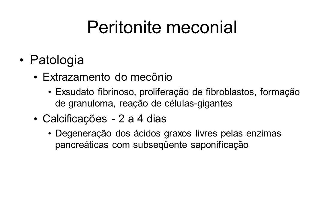 Peritonite meconial Patologia Extrazamento do mecônio Exsudato fibrinoso, proliferação de fibroblastos, formação de granuloma, reação de células-gigan