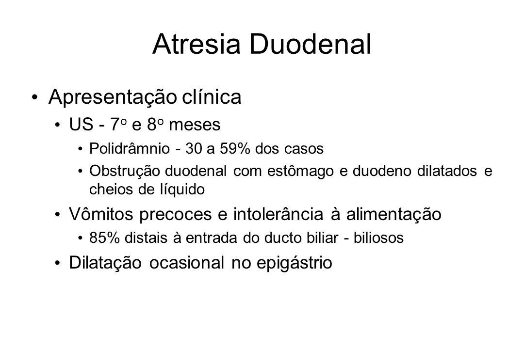 Atresia Duodenal Apresentação clínica US - 7 o e 8 o meses Polidrâmnio - 30 a 59% dos casos Obstrução duodenal com estômago e duodeno dilatados e chei