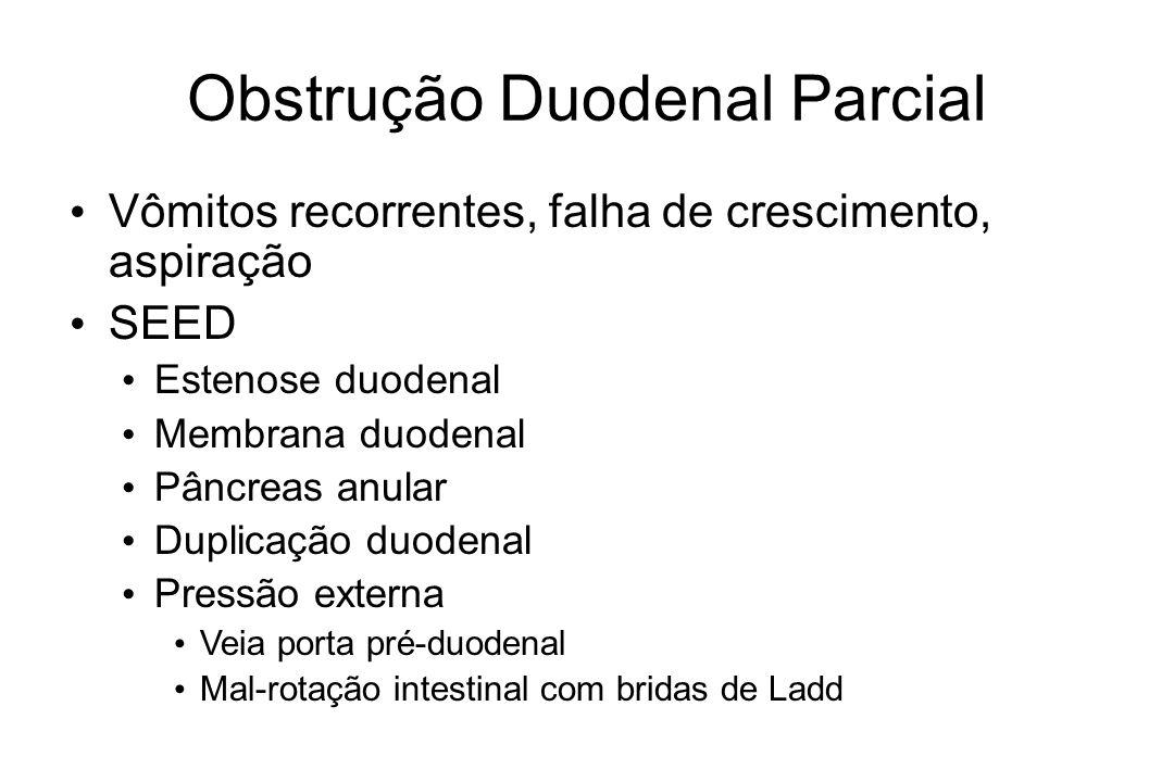 Obstrução Duodenal Parcial Vômitos recorrentes, falha de crescimento, aspiração SEED Estenose duodenal Membrana duodenal Pâncreas anular Duplicação du