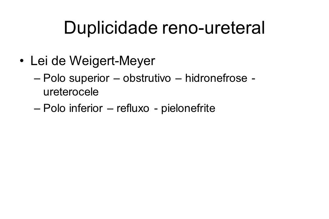 Duplicidade reno-ureteral Lei de Weigert-Meyer –Polo superior – obstrutivo – hidronefrose - ureterocele –Polo inferior – refluxo - pielonefrite