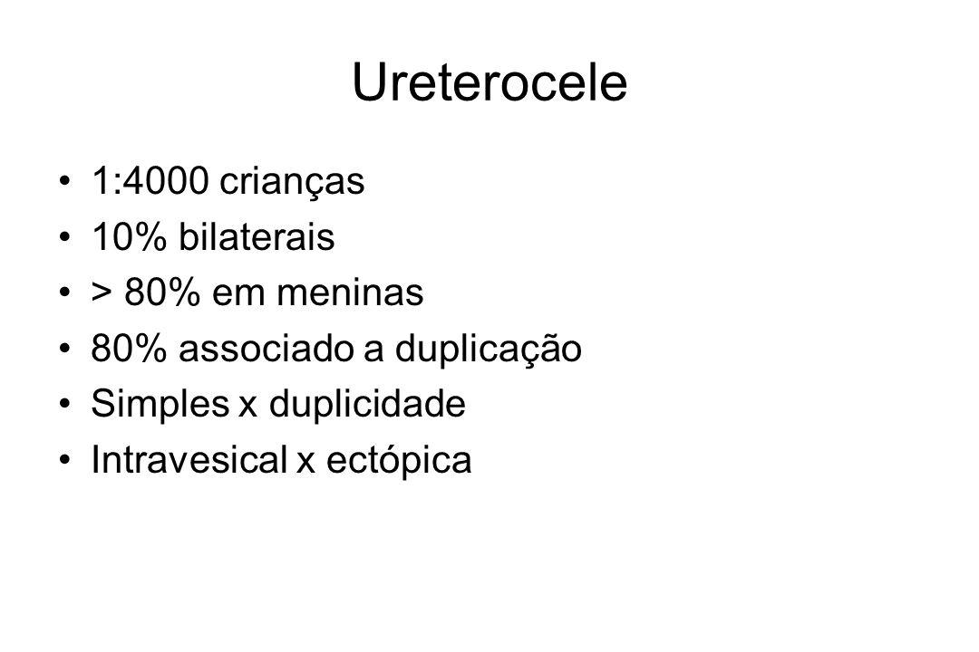 Ureterocele 1:4000 crianças 10% bilaterais > 80% em meninas 80% associado a duplicação Simples x duplicidade Intravesical x ectópica
