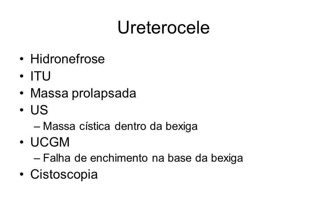 Ureterocele Hidronefrose ITU Massa prolapsada US –Massa cística dentro da bexiga UCGM –Falha de enchimento na base da bexiga Cistoscopia