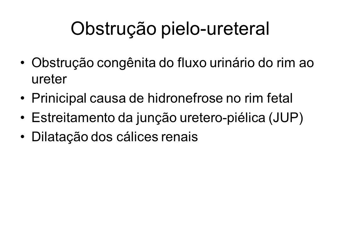 Obstrução pielo-ureteral Obstrução congênita do fluxo urinário do rim ao ureter Prinicipal causa de hidronefrose no rim fetal Estreitamento da junção uretero-piélica (JUP) Dilatação dos cálices renais