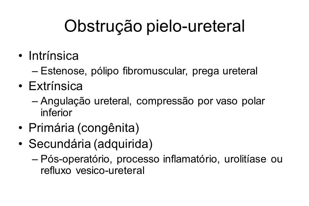 Obstrução pielo-ureteral Período fetal –Estenose de JUP –Refluxo –Hidronefrose fisiológica transitória Período neonatal e pediátrico –Dor, massa palpável, hematúria, náuseas e vômitos, hipertensão arterial