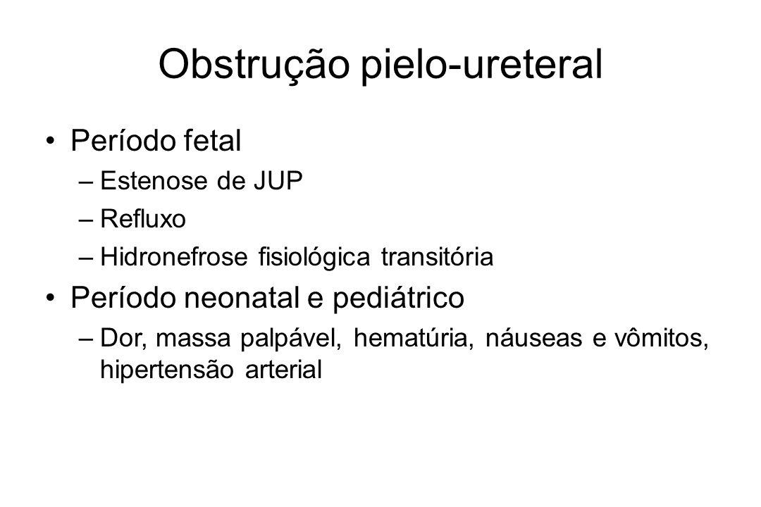 Obstrução pielo-ureteral Bilateral –Estenose de JUP bilateral –Refluxo vesico-ureteral –Válvula de uretra posterior –Síndrome de Prune-belly –Atresia de uretra –Anomalias da placa cloacal