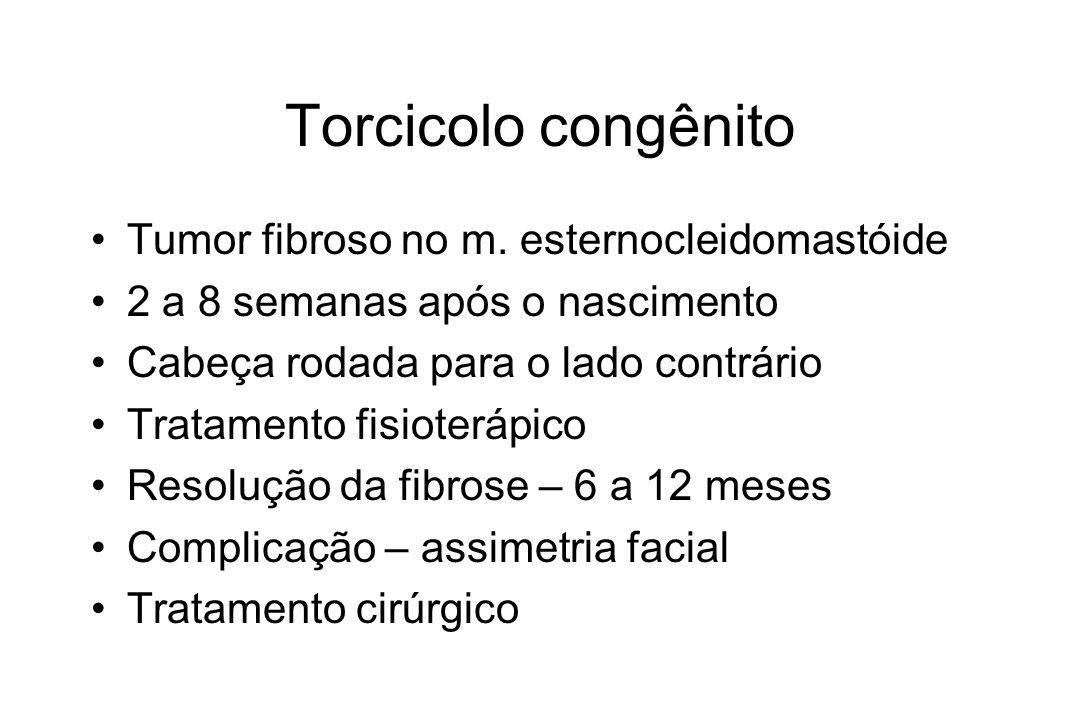Torcicolo congênito Tumor fibroso no m. esternocleidomastóide 2 a 8 semanas após o nascimento Cabeça rodada para o lado contrário Tratamento fisioterá