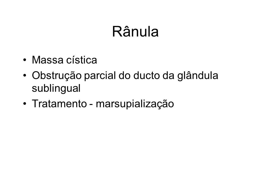 Rânula Massa cística Obstrução parcial do ducto da glândula sublingual Tratamento - marsupialização