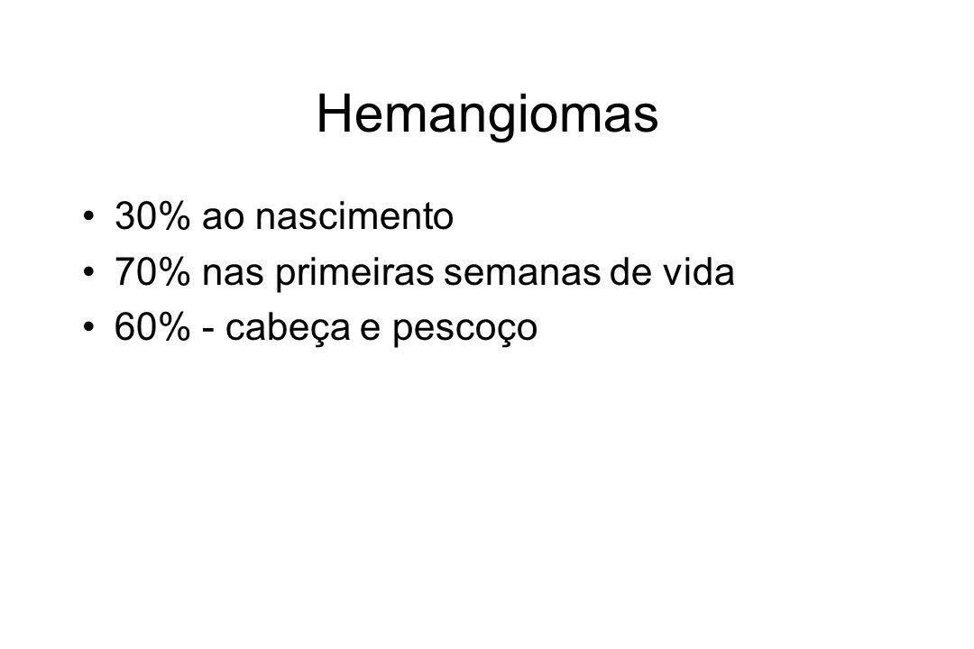 Hemangiomas 30% ao nascimento 70% nas primeiras semanas de vida 60% - cabeça e pescoço