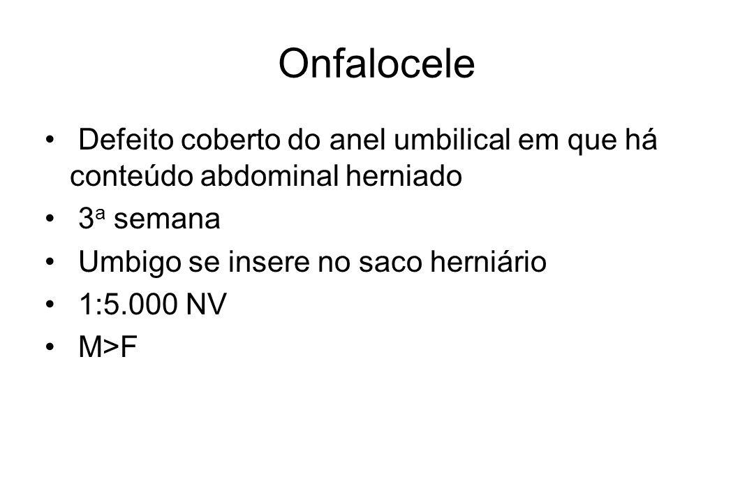 Onfalocele Defeito coberto do anel umbilical em que há conteúdo abdominal herniado 3 a semana Umbigo se insere no saco herniário 1:5.000 NV M>F