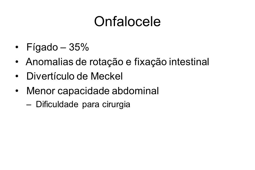 Onfalocele Fígado – 35% Anomalias de rotação e fixação intestinal Divertículo de Meckel Menor capacidade abdominal – Dificuldade para cirurgia
