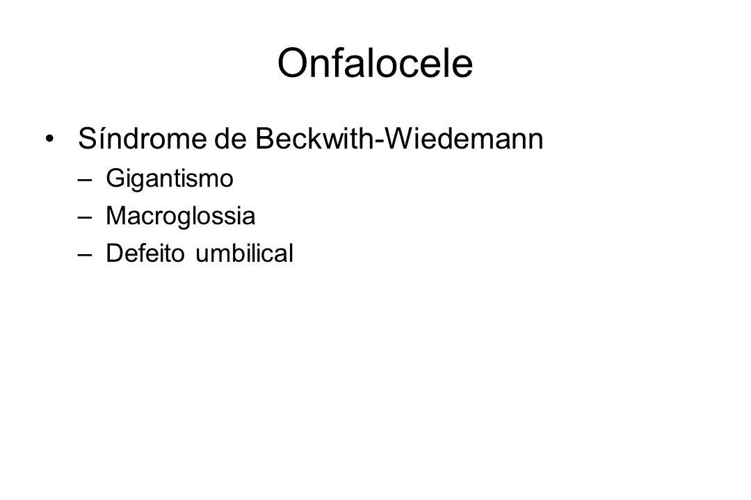 Onfalocele Síndrome de Beckwith-Wiedemann – Gigantismo – Macroglossia – Defeito umbilical