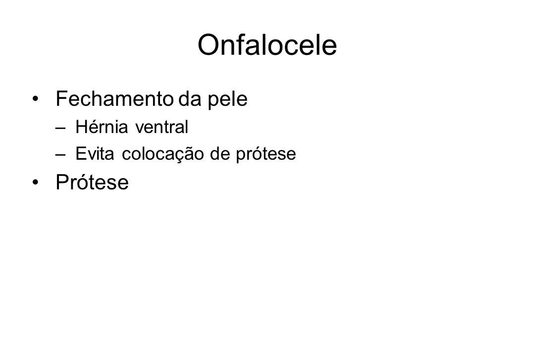 Onfalocele Fechamento da pele – Hérnia ventral – Evita colocação de prótese Prótese