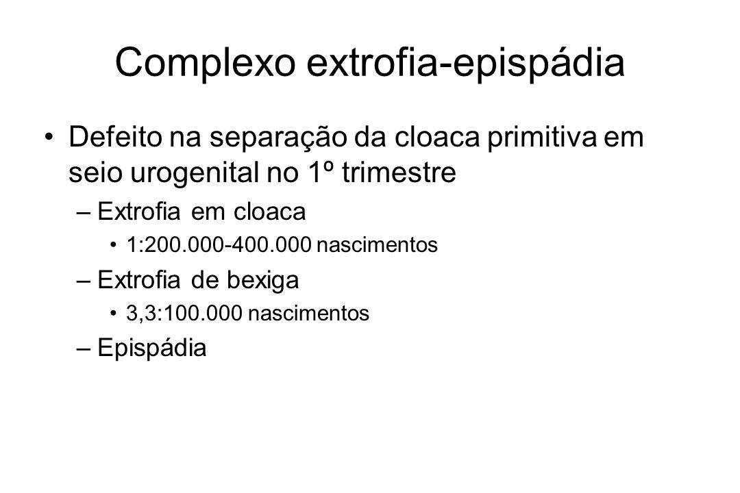 Epispádia Epispádia masculina –1:117.000 nascimentos Epispádia feminina –1:484.000 nascimentos Sínfise púbica alargada Músculos retos abdominais afastados na porção distal