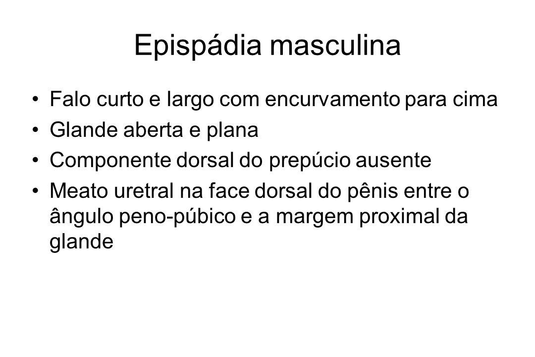 Epispádia feminina Clítoris bífido Lábios divergentes superiormente