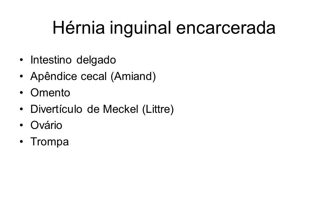 Hérnia inguinal encarcerada Intestino delgado Apêndice cecal (Amiand) Omento Divertículo de Meckel (Littre) Ovário Trompa