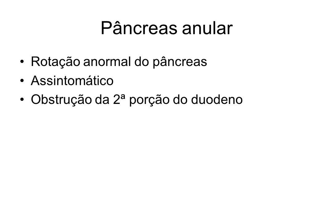 Pâncreas anular Rotação anormal do pâncreas Assintomático Obstrução da 2ª porção do duodeno