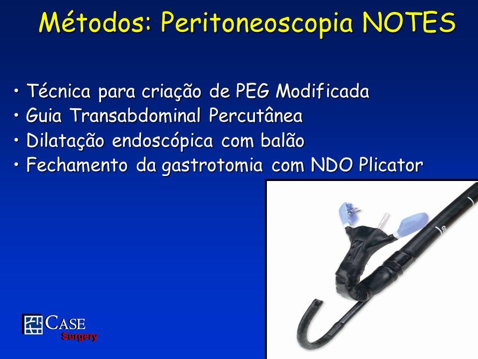 C ASE Surgery C ASE Surgery 19 Métodos: Peritoneoscopia NOTES Técnica para criação de PEG Modificada Técnica para criação de PEG Modificada Guia Trans