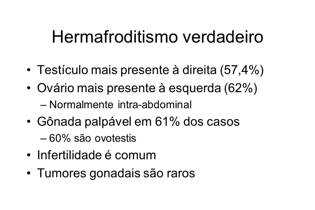 Hermafroditismo verdadeiro Testículo mais presente à direita (57,4%) Ovário mais presente à esquerda (62%) –Normalmente intra-abdominal Gônada palpáve