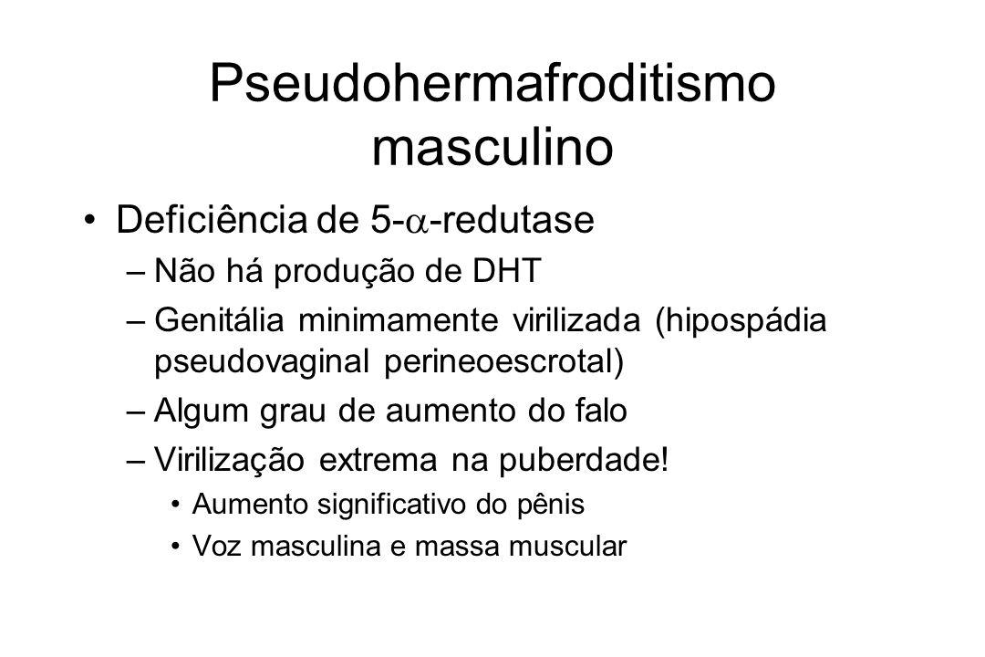 Pseudohermafroditismo masculino Deficiência de 5- -redutase –Não há produção de DHT –Genitália minimamente virilizada (hipospádia pseudovaginal perine