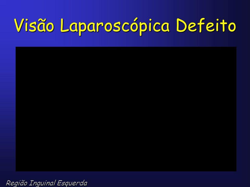 Visão Laparoscópica Defeito Região Inguinal Esquerda
