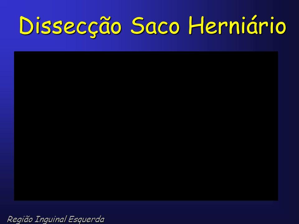 Dissecção Saco Herniário Região Inguinal Esquerda