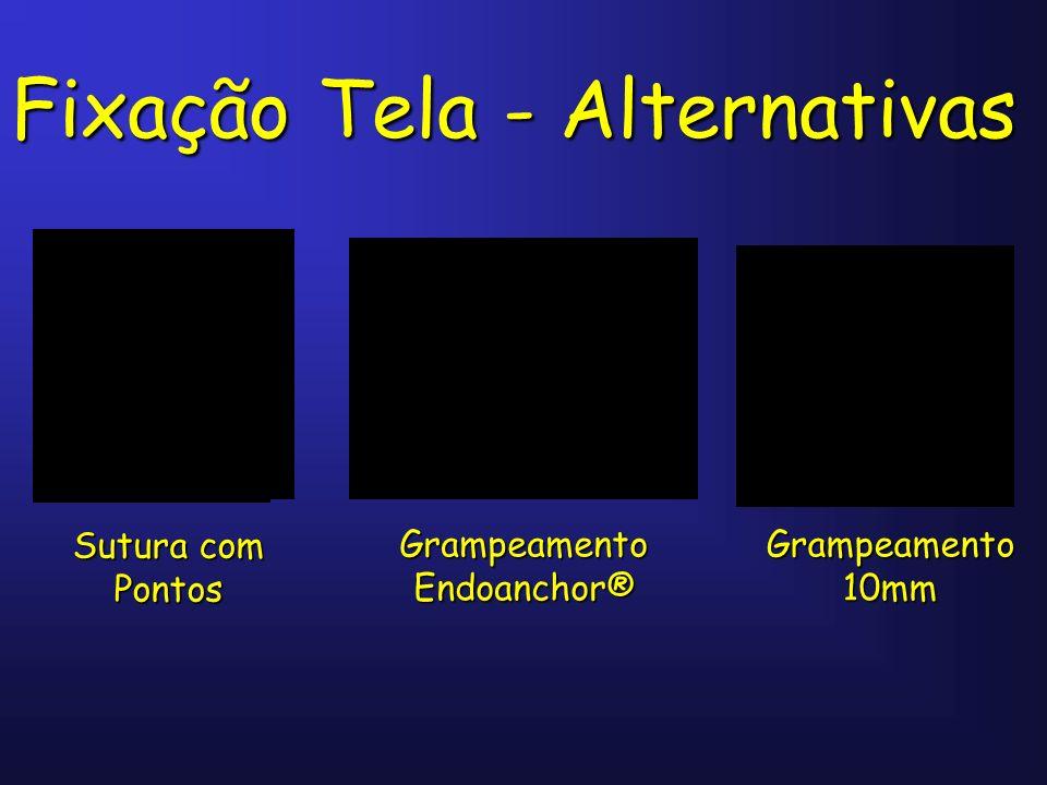 Fixação Tela - Alternativas Sutura com Pontos Grampeamento Endoanchor® Grampeamento 10mm