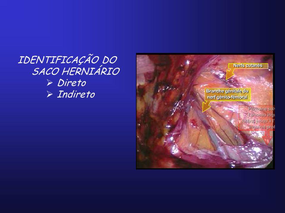 IDENTIFICAÇÃO DO SACO HERNIÁRIO Direto Indireto