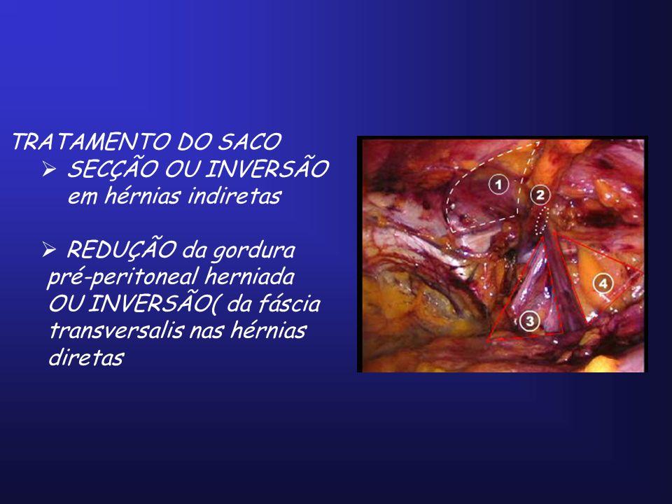 TRATAMENTO DO SACO SECÇÃO OU INVERSÃO em hérnias indiretas REDUÇÃO da gordura pré-peritoneal herniada OU INVERSÃO( da fáscia transversalis nas hérnias