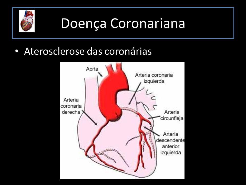 Doença Coronariana Aterosclerose das coronárias