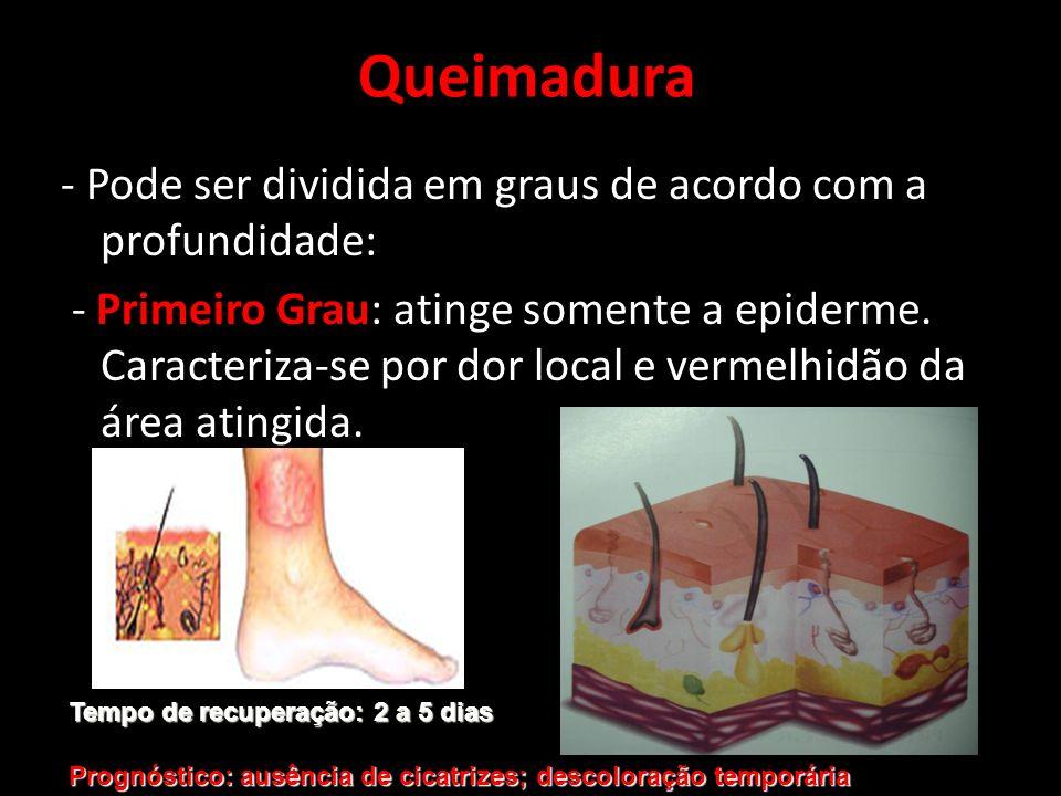 - Pode ser dividida em graus de acordo com a profundidade: - Primeiro Grau: atinge somente a epiderme. Caracteriza-se por dor local e vermelhidão da á
