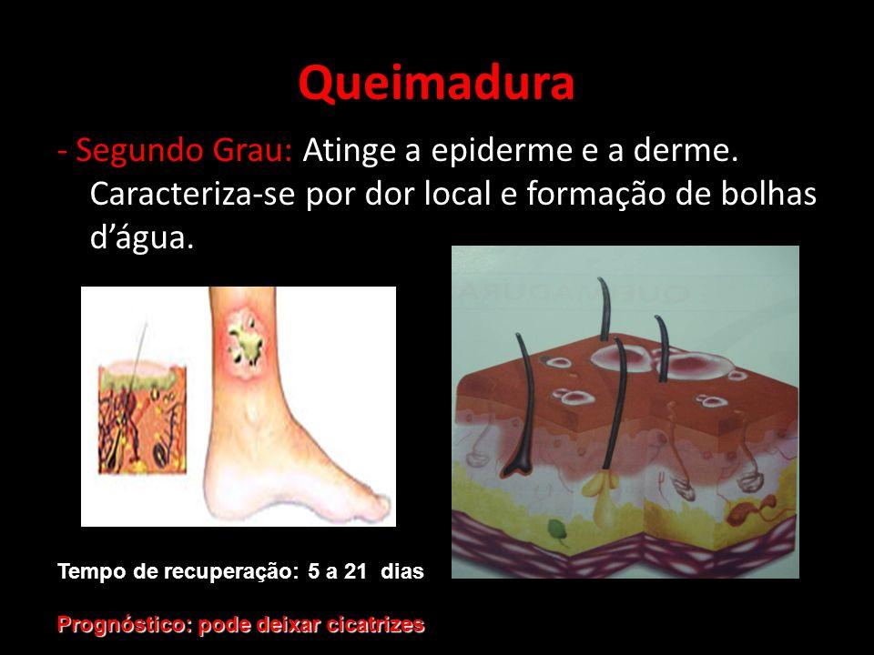 - Segundo Grau: Atinge a epiderme e a derme. Caracteriza-se por dor local e formação de bolhas dágua. Queimadura Tempo de recuperação: 5 a 21 dias Pro