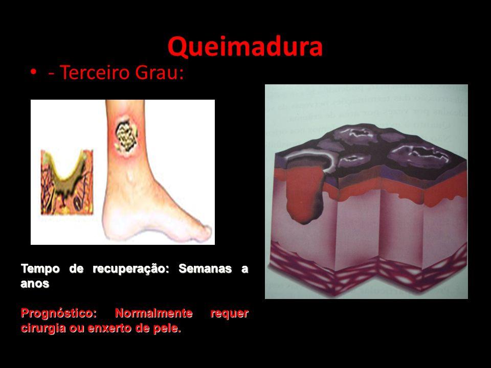 - Terceiro Grau: Queimadura Tempo de recuperação: Semanas a anos Prognóstico: Normalmente requer cirurgia ou enxerto de pele.