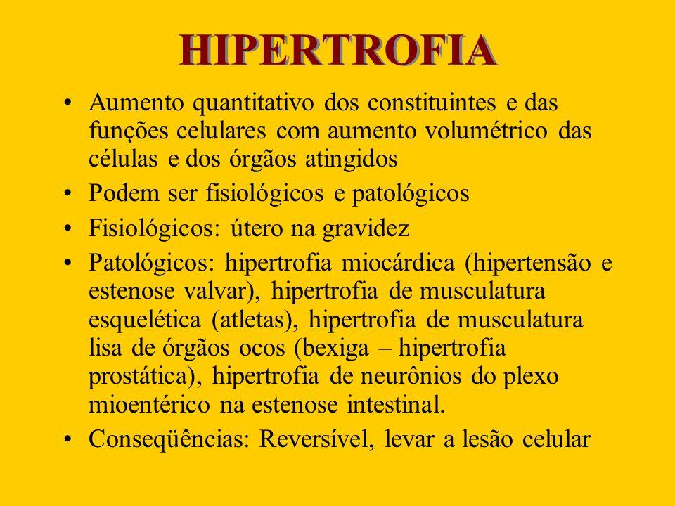 HIPERTROFIA Aumento quantitativo dos constituintes e das funções celulares com aumento volumétrico das células e dos órgãos atingidos Podem ser fisiol