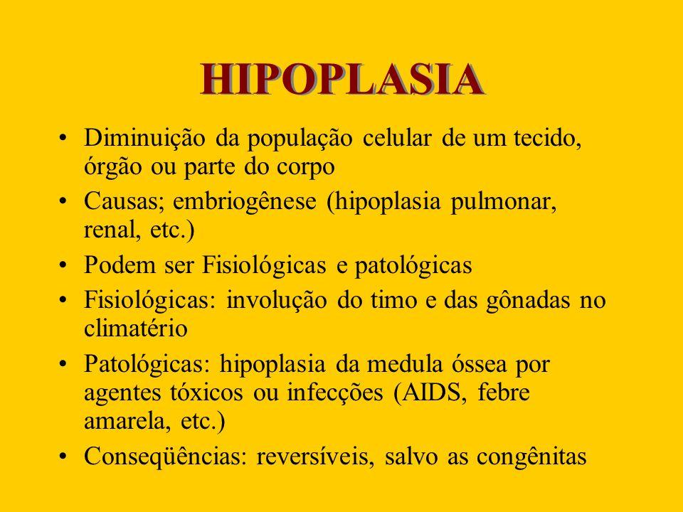 HIPOPLASIA Diminuição da população celular de um tecido, órgão ou parte do corpo Causas; embriogênese (hipoplasia pulmonar, renal, etc.) Podem ser Fis