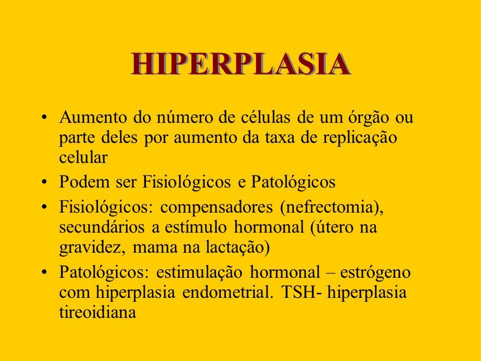 HIPERPLASIA Aumento do número de células de um órgão ou parte deles por aumento da taxa de replicação celular Podem ser Fisiológicos e Patológicos Fis