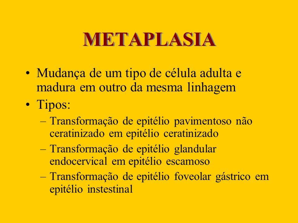 METAPLASIA Mudança de um tipo de célula adulta e madura em outro da mesma linhagem Tipos: –Transformação de epitélio pavimentoso não ceratinizado em e