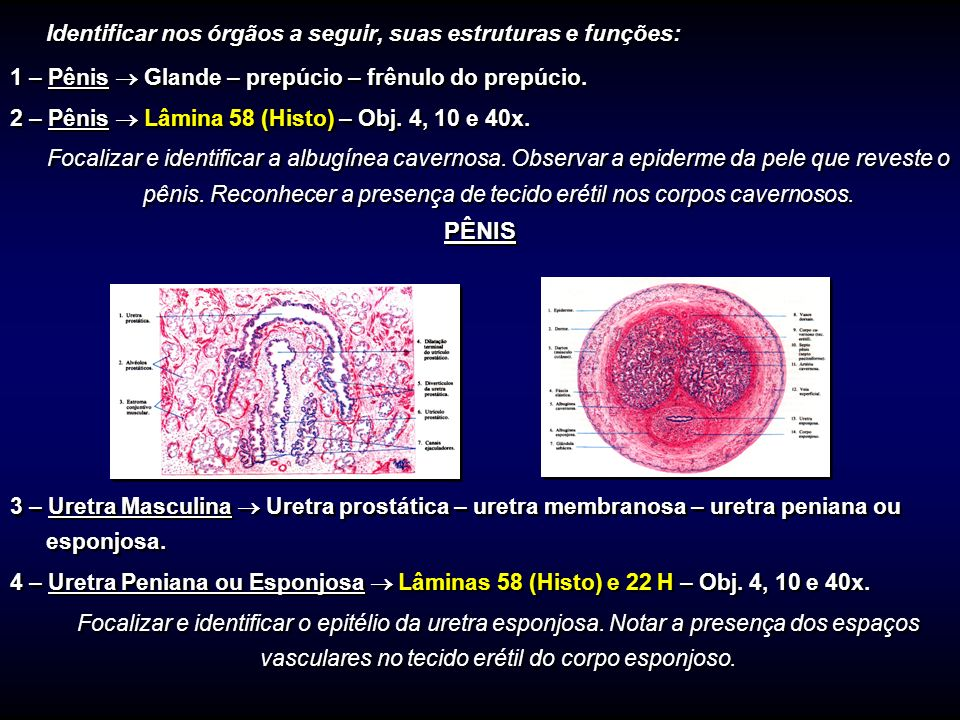 Identificar nos órgãos a seguir, suas estruturas e funções: 1 – Pênis Glande – prepúcio – frênulo do prepúcio. 2 – Pênis Lâmina 58 (Histo) – Obj. 4, 1