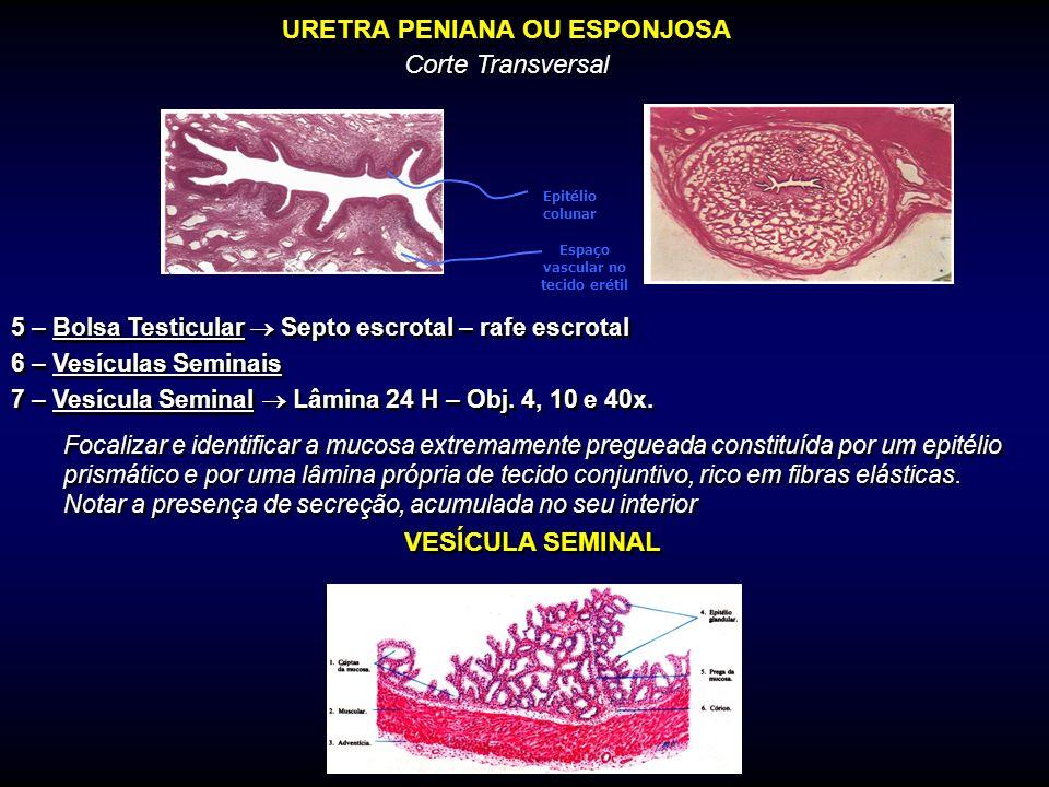 URETRA PENIANA OU ESPONJOSA Corte Transversal 5 – Bolsa Testicular Septo escrotal – rafe escrotal 6 – Vesículas Seminais 7 – Vesícula Seminal Lâmina 2